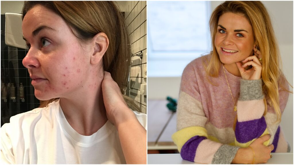 hudproblemer i voksenalderen